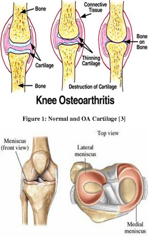 Measurement of Cartilage Thickness in Osteoarthritis and ...