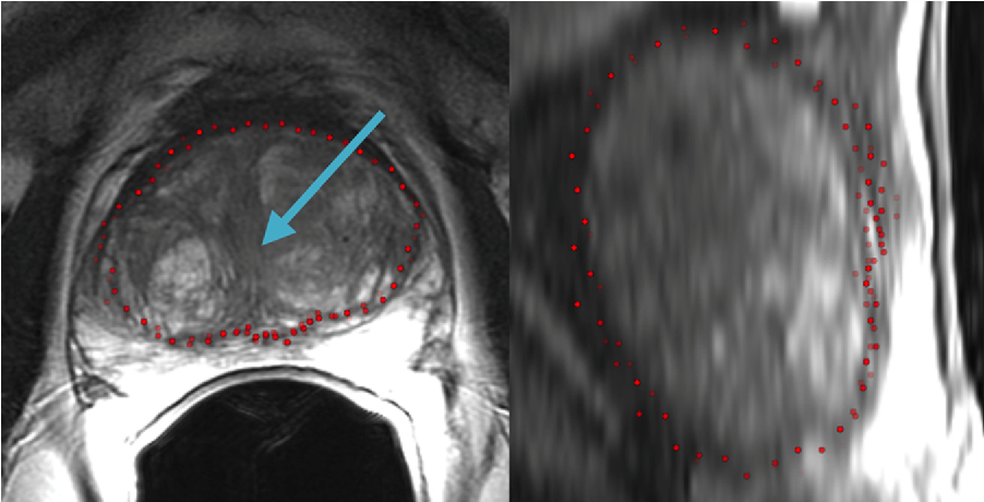 Figure 3 for PCG-Cut: Graph Driven Segmentation of the Prostate Central Gland