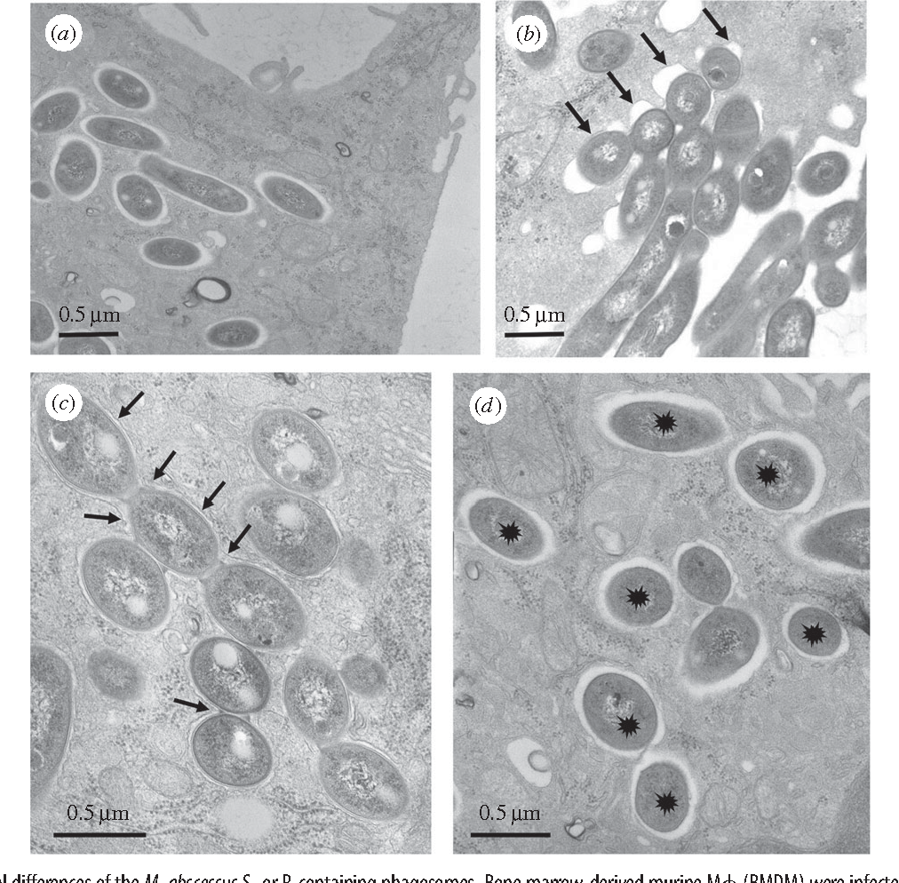 the distinct fate of smooth and rough mycobacterium abscessus