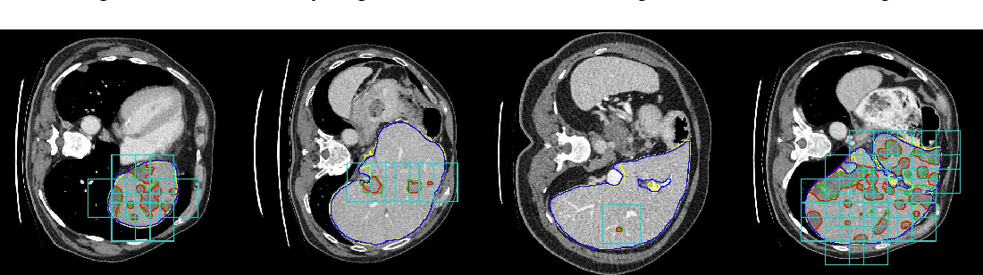 Figure 3 for Detection-aided liver lesion segmentation using deep learning
