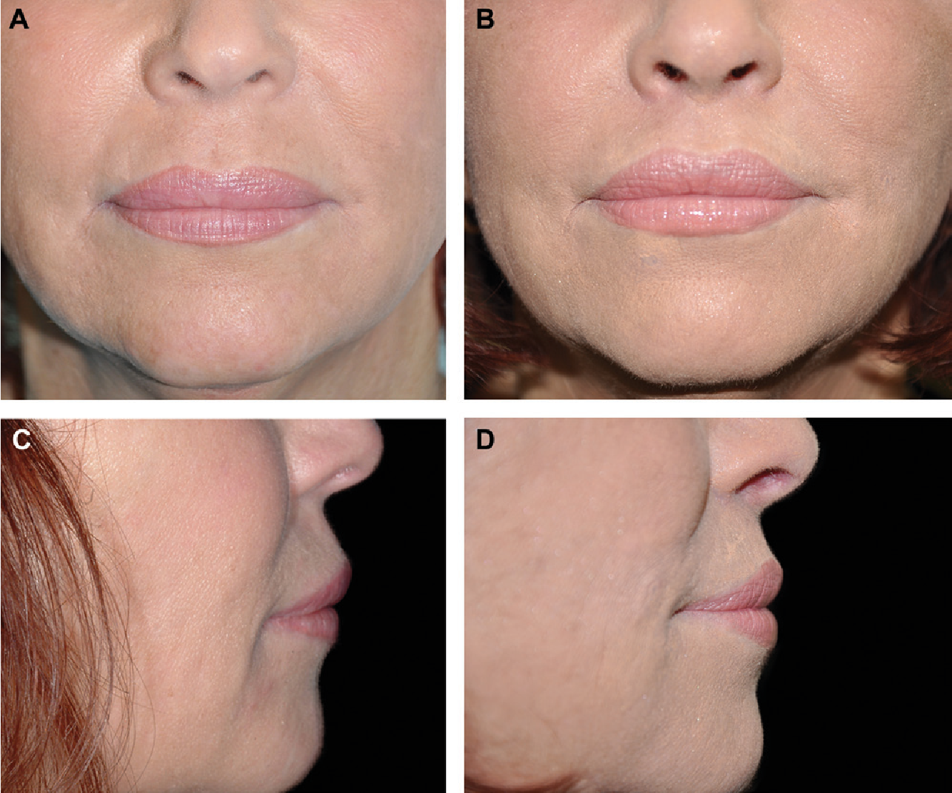 Figure 15 from The endonasal lip lift: personal technique