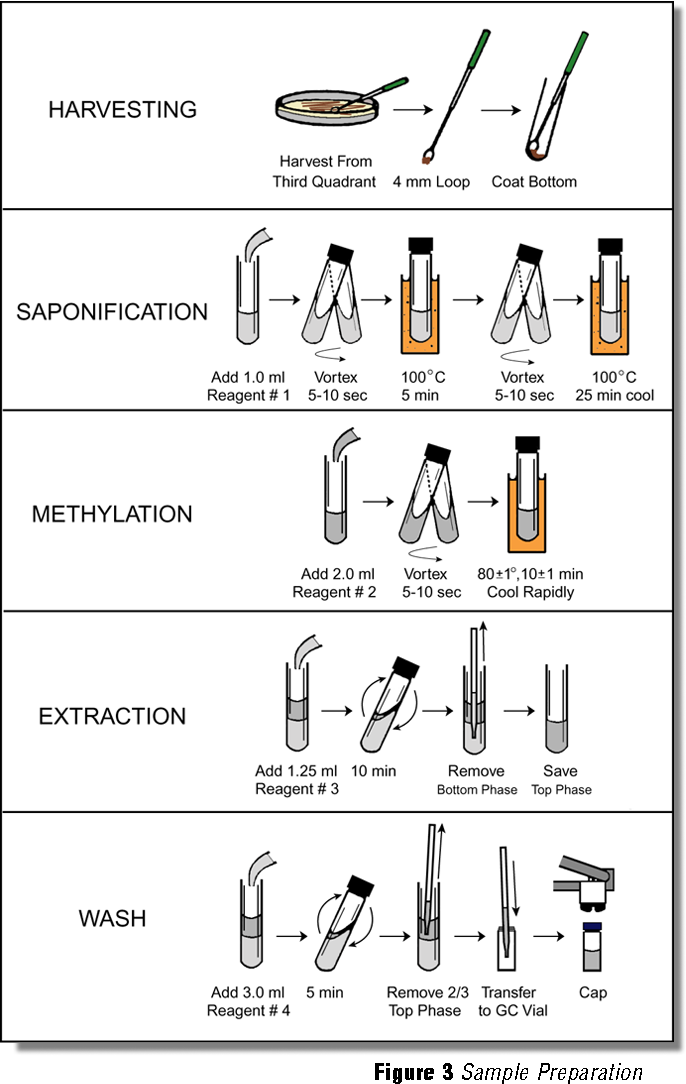 Bacterial identification by gas chromatographic analysis of fatty figure 3 ccuart Choice Image