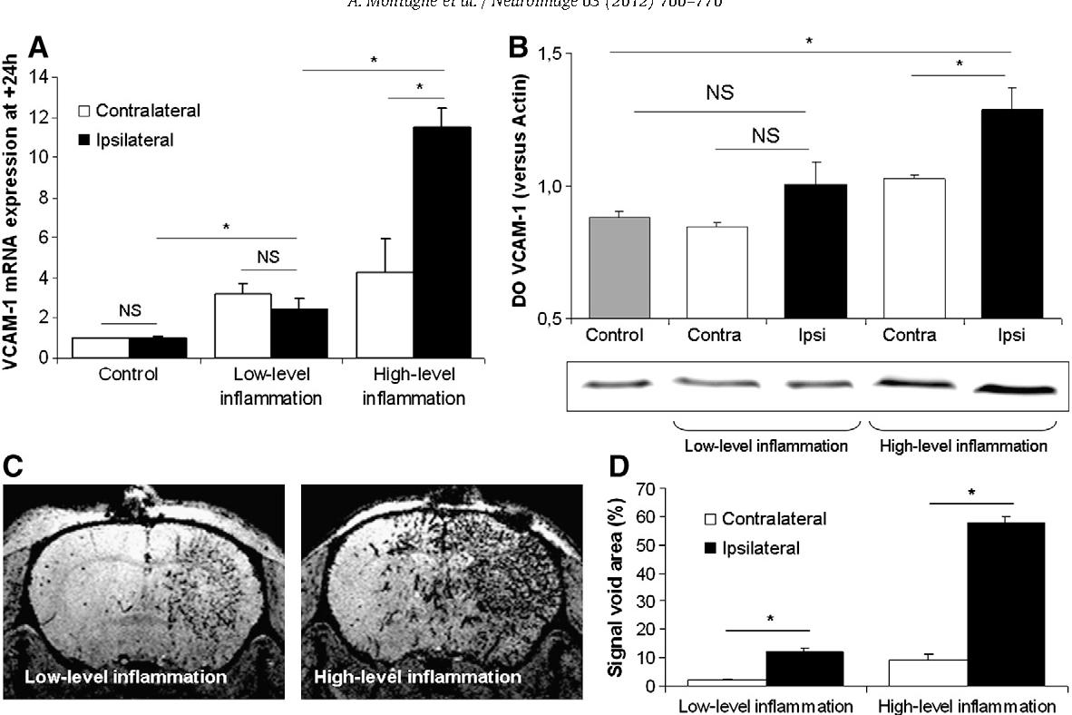 Figure 4 from Ultra-sensitive molecular MRI of cerebrovascular cell
