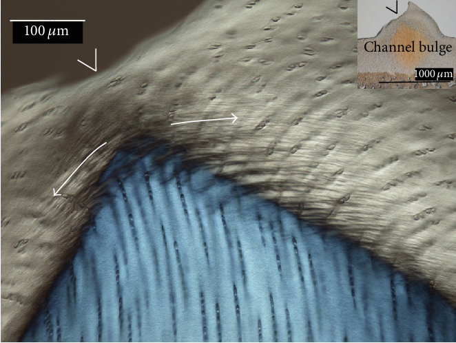 """Figure 11: Bulge facture of a Cr7 sample. Following 7MPa creep loading, samples suffered microfractures in the surface layer of the bulge region, as shown here. The arrows trace the fibrillar in-phase crimping in the surface layer and the """"V"""" indicates the crack path. DIC imaging."""
