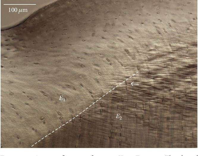 Figure 9: A magnification of region X in Figure 8. The dotted line indicates the structural discontinuity that is obvious between regions 𝐸 1 and 𝐸 2 . The arrow points to the site that was imaged at higher magnification, shown in Figure 10. DIC imaging.
