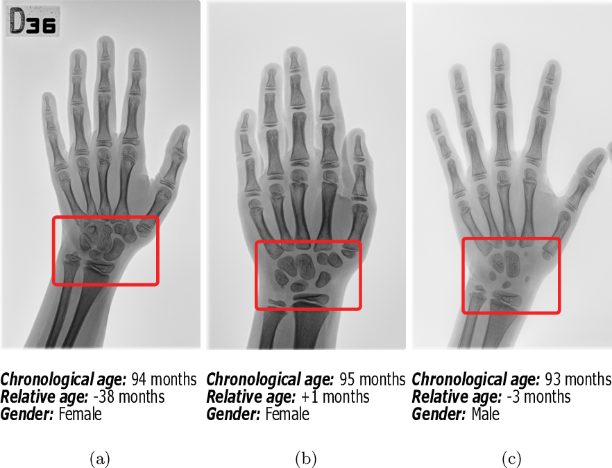 Figure 1 for SIMBA: Specific Identity Markers for Bone Age Assessment