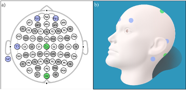 Figure 1 for One-class Autoencoder Approach for Optimal Electrode Set-up Identification in Wearable EEG Event Monitoring