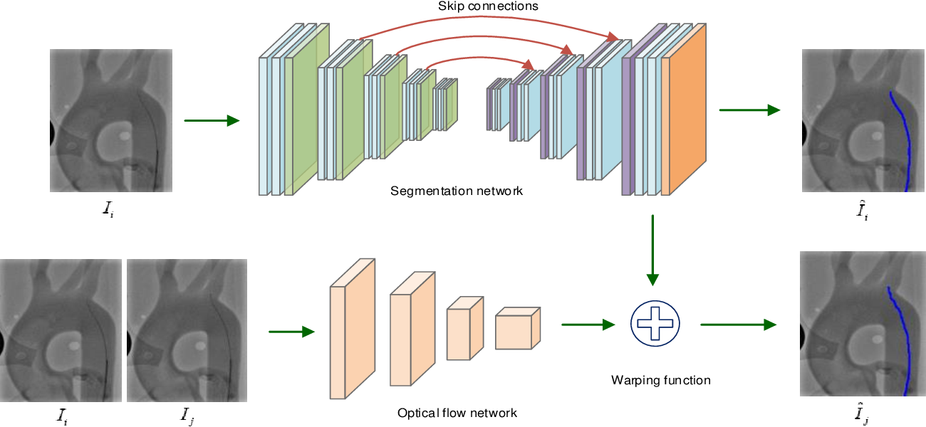 Figure 3 for End-to-End Real-time Catheter Segmentation with Optical Flow-Guided Warping during Endovascular Intervention
