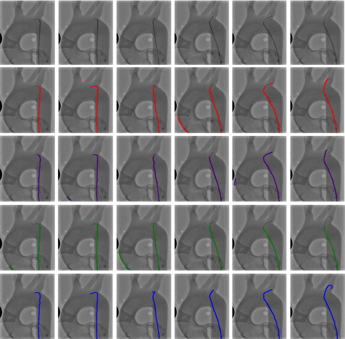 Figure 4 for End-to-End Real-time Catheter Segmentation with Optical Flow-Guided Warping during Endovascular Intervention