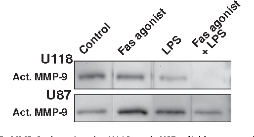 Fig. 6. MMP-9 detection in U118 and U87 glioblastoma cell line supernatant after Fas and/or TLR4 pathway activation. After Fas pathway activation (Fas agonist antibody 7C11, 20 ng/mL), the level of MMP-9 active form (Act. MMP-9) is not modified in U118 glioblastoma cell line supernatant but is increased in U87 glioblastoma cell line supernatant compared with controls. After TLR4 pathway activation (LPS, 150 ng/mL), the level of MMP-9 active form is decreased in U118 glioblastoma cell line supernatant but is increased in U87 glioblastoma cell line supernatant compared with controls. Compared with the levels observed after Fas pathway activation, the level of MMP-9 active form is decreased after the simultaneous activation of Fas and TLR4 pathway in both cell line supernatants.
