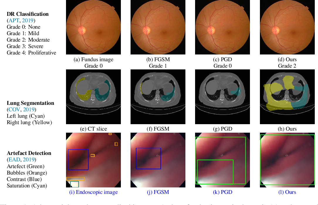 Figure 1 for Stabilized Medical Image Attacks