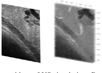 Figure 1 for SCATGAN for Reconstruction of Ultrasound Scatterers Using Generative Adversarial Networks