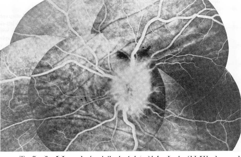 Figure 3 From Choroidal Folds In Association With Papilloedema