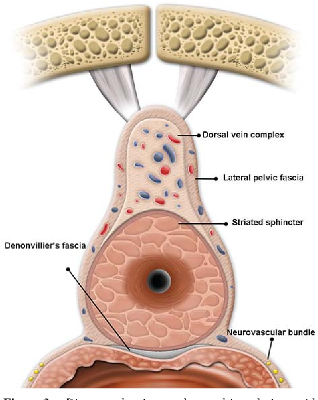 Radical Prostatectomy Evolution Of Surgical Technique From The