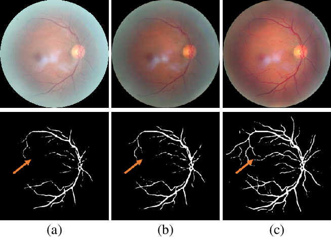 Figure 1 for Understanding and Correcting Low-quality Retinal Fundus Images for Clinical Analysis