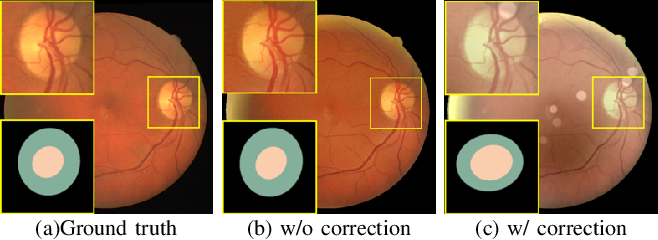 Figure 3 for Understanding and Correcting Low-quality Retinal Fundus Images for Clinical Analysis