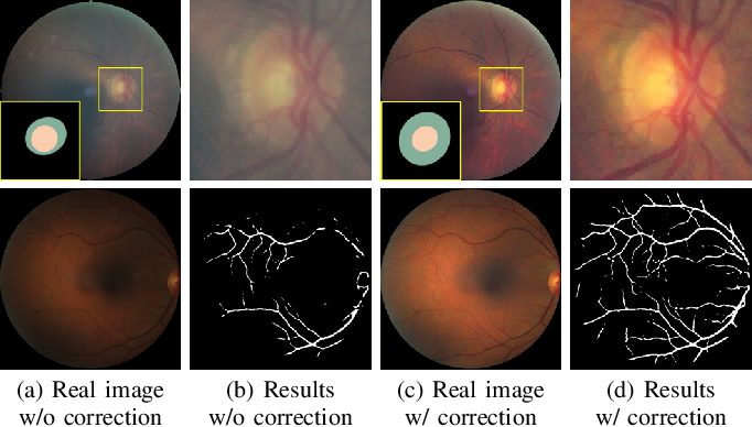 Figure 4 for Understanding and Correcting Low-quality Retinal Fundus Images for Clinical Analysis