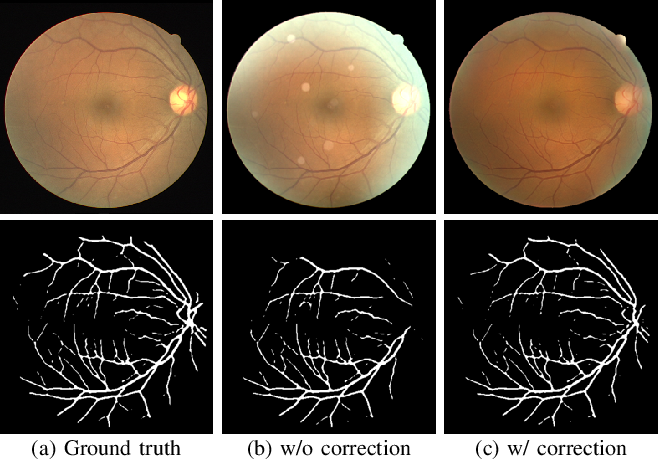 Figure 2 for Understanding and Correcting Low-quality Retinal Fundus Images for Clinical Analysis