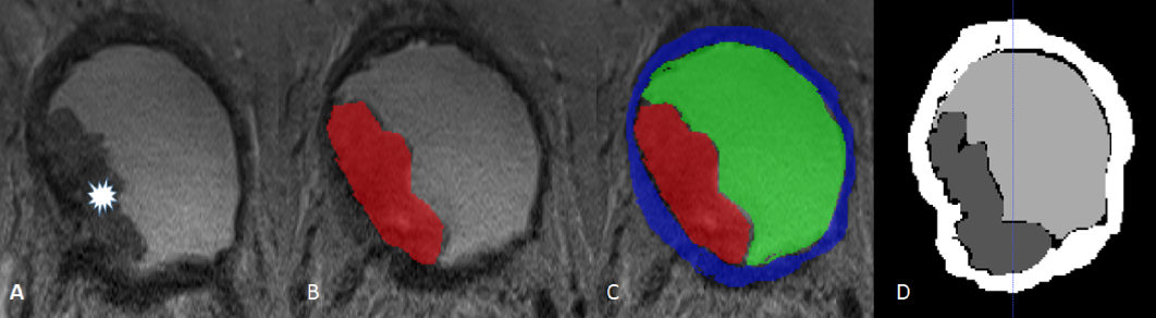 Figure 3 for Bladder segmentation based on deep learning approaches: current limitations and lessons