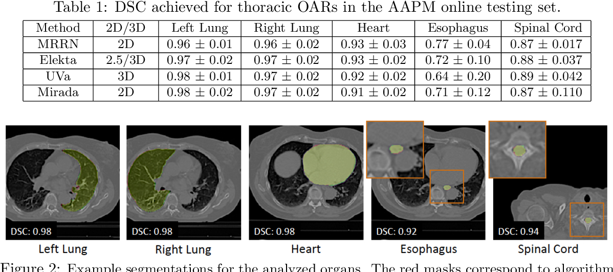 Figure 2 for Multiple resolution residual network for automatic thoracic organs-at-risk segmentation from CT