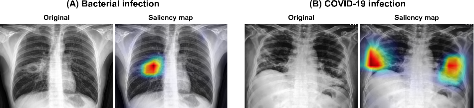 Figure 4 for Vision Transformer for COVID-19 CXR Diagnosis using Chest X-ray Feature Corpus