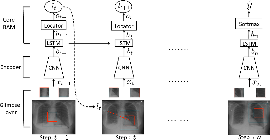 Figure 1 for Learning what to look in chest X-rays with a recurrent visual attention model
