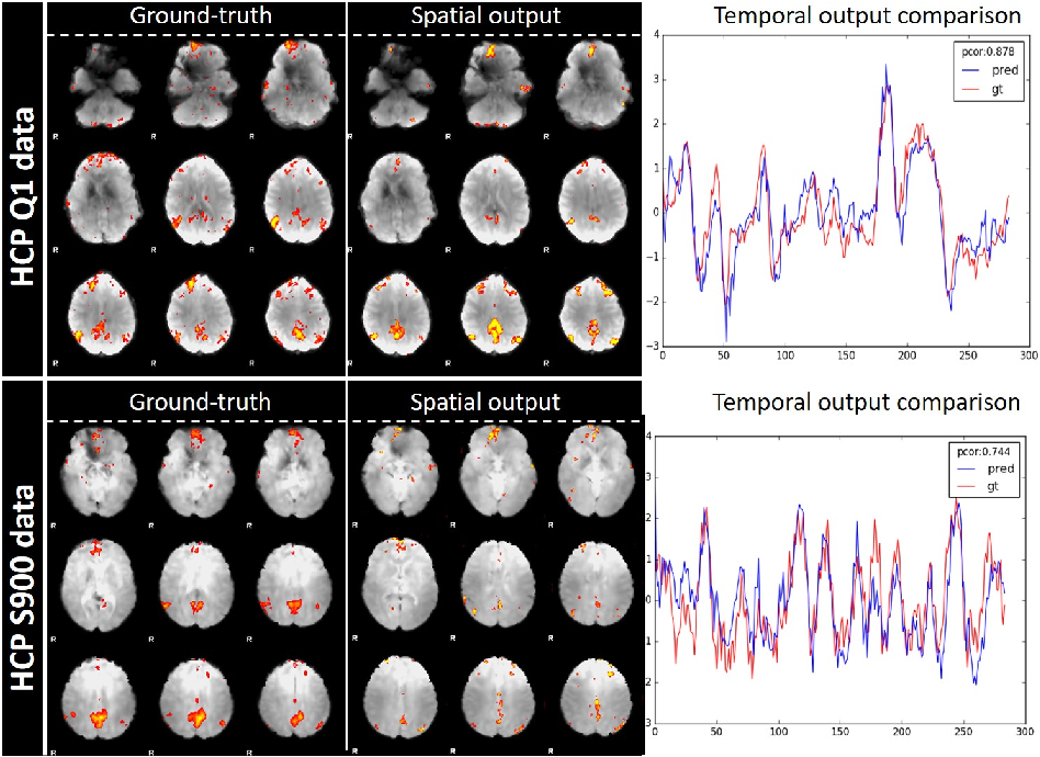 Figure 4 for Modeling 4D fMRI Data via Spatio-Temporal Convolutional Neural Networks (ST-CNN)
