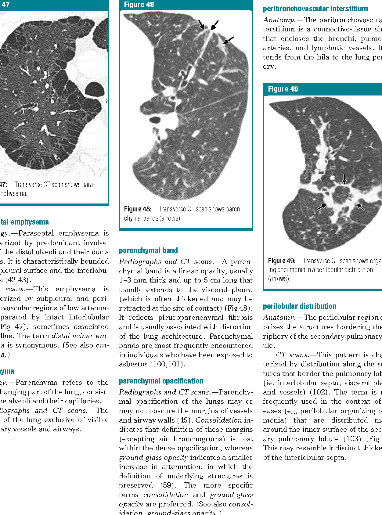 Fleischner Society: glossary of terms for thoracic imaging ...