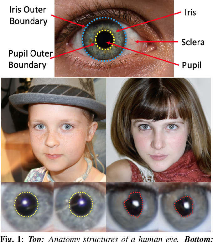 Figure 1 for Eyes Tell All: Irregular Pupil Shapes Reveal GAN-generated Faces