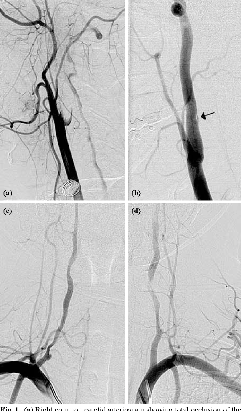 Fig. 1. (a) Right common carotid arteriogram showing total occlusion of the internal carotid artery at its origin. (b) Left common carotid arteriogram demonstrates a small dissection flap (arrow) on the posterior wall of the internal carotid artery. (c) Right subclavian arteriogram shows dissection flap and a small pseudoaneurysm at approximately the C7-T1 level; distal cervical vertebral artery is involved to a lesser extent. (d) Left subclavian artery shows a similar involvement of the vertebral artery on the right side.