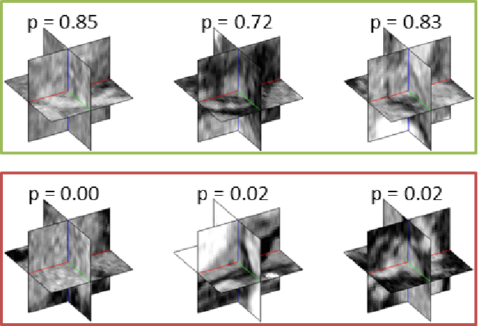 Figure 3 for Improving Computer-aided Detection using Convolutional Neural Networks and Random View Aggregation