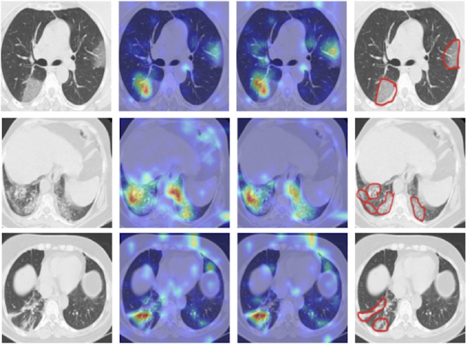 Figure 1 for COVID CT-Net: Predicting Covid-19 From Chest CT Images Using Attentional Convolutional Network
