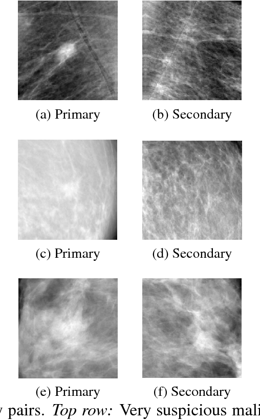 Figure 1 for Classifying Symmetrical Differences and Temporal Change in Mammography Using Deep Neural Networks