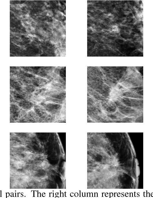 Figure 3 for Classifying Symmetrical Differences and Temporal Change in Mammography Using Deep Neural Networks