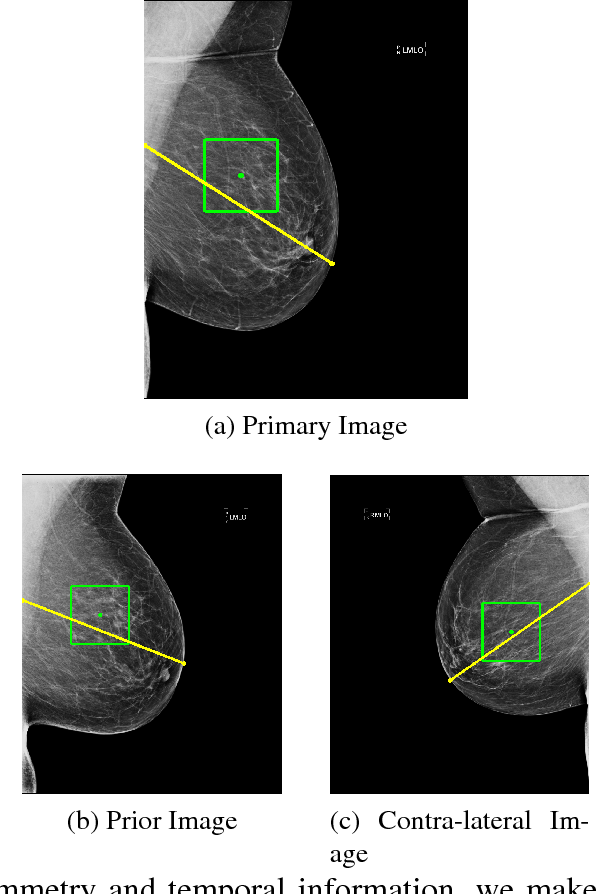 Figure 4 for Classifying Symmetrical Differences and Temporal Change in Mammography Using Deep Neural Networks