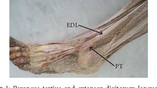 Figure 1 from The Fibularis (Peroneus) Tertius Muscle in Humans: A ...