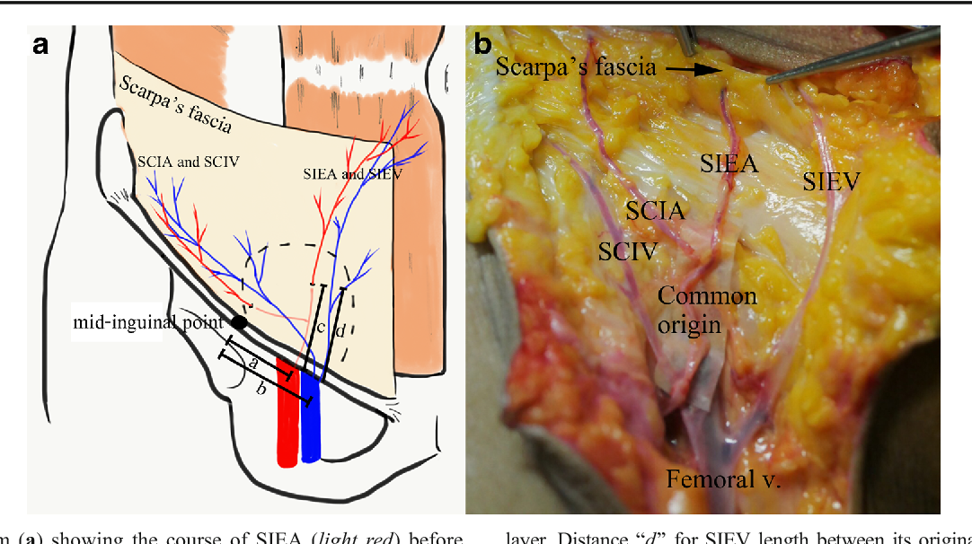 Anatomy of superficial inferior epigastric vessels: revival of ...