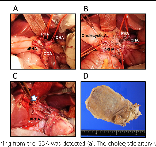 Accessory right hepatic artery branched from gastroduodenal artery ...