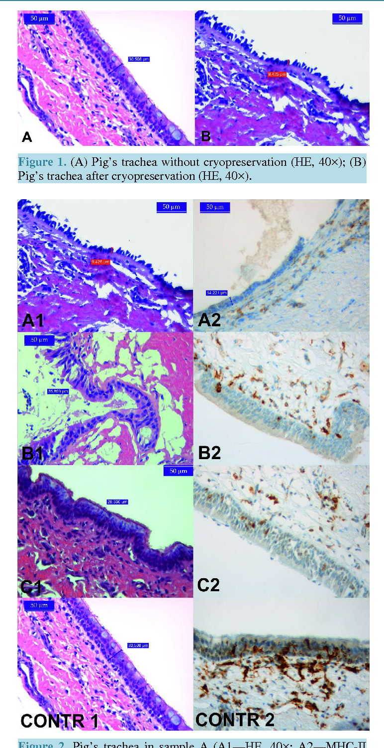 Figure 1. (A) Pig's trachea without cryopreservation (HE, 40×); (B) Pig's trachea after cryopreservation (HE, 40×).