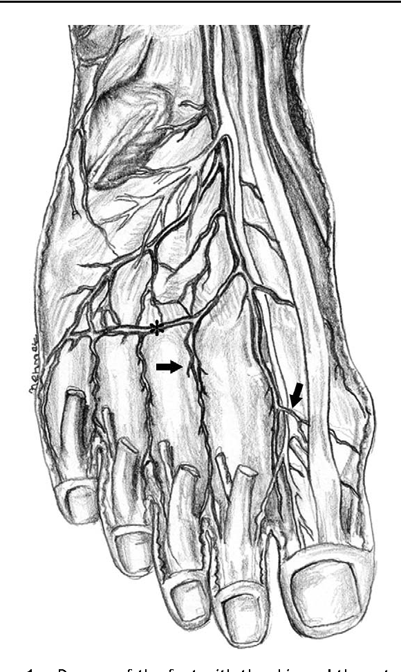 Vascular anatomy of the metatarsal bones and the interosseous ...