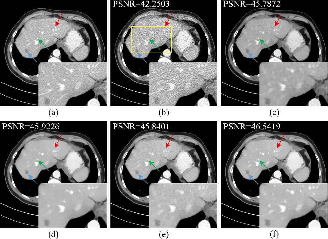 Figure 2 for Low-Dose CT Image Denoising Using Parallel-Clone Networks