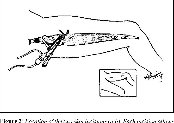 Minimally invasive endoscopic technique of harvesting free gracilis ...