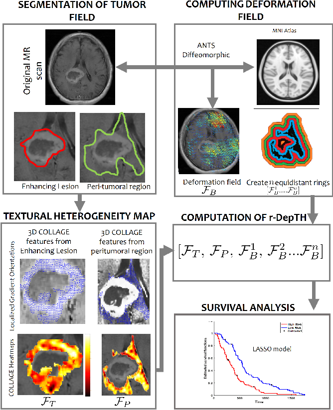 Figure 1 for Radiomic Deformation and Textural Heterogeneity (R-DepTH) Descriptor to characterize Tumor Field Effect: Application to Survival Prediction in Glioblastoma