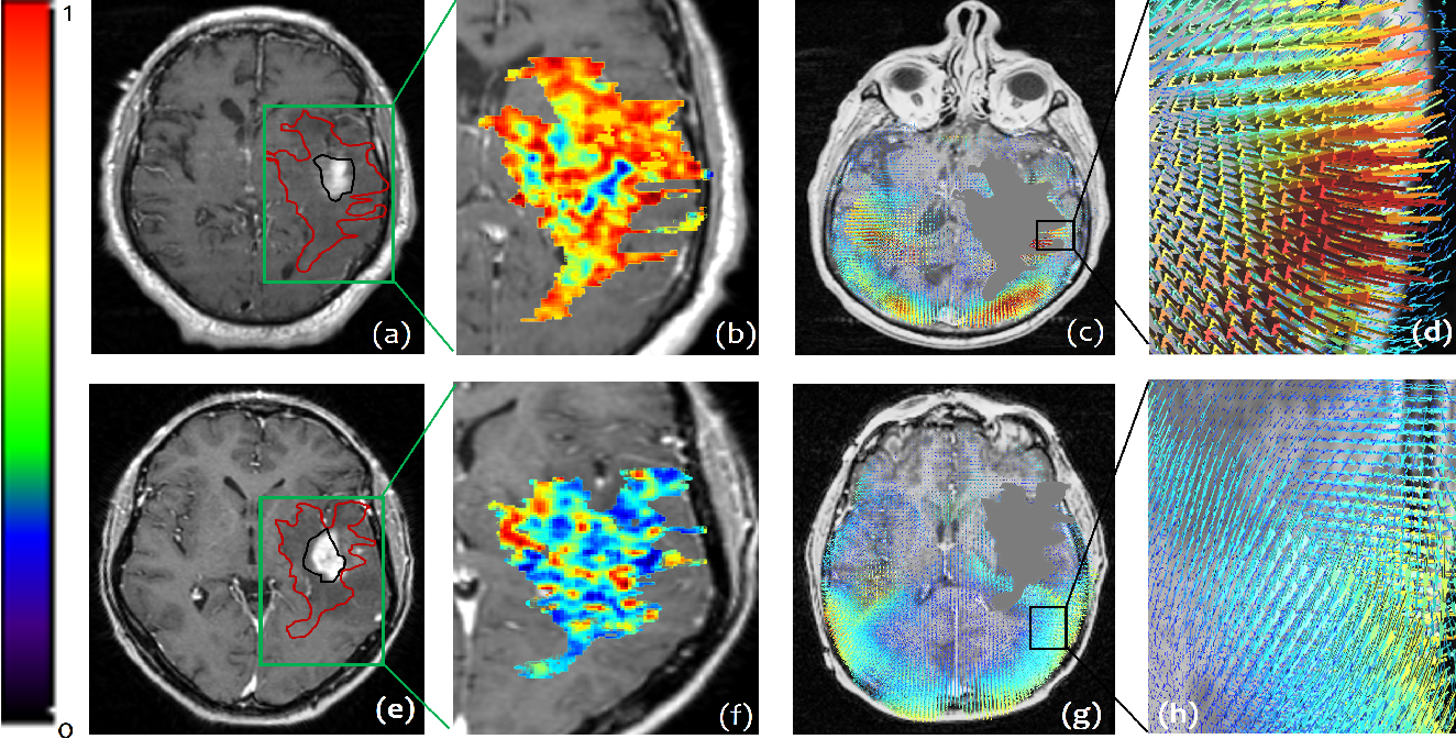 Figure 3 for Radiomic Deformation and Textural Heterogeneity (R-DepTH) Descriptor to characterize Tumor Field Effect: Application to Survival Prediction in Glioblastoma