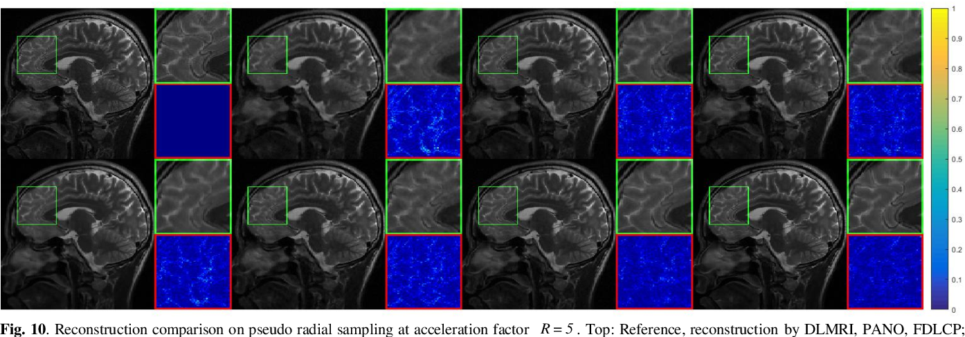 Figure 2 for Homotopic Gradients of Generative Density Priors for MR Image Reconstruction