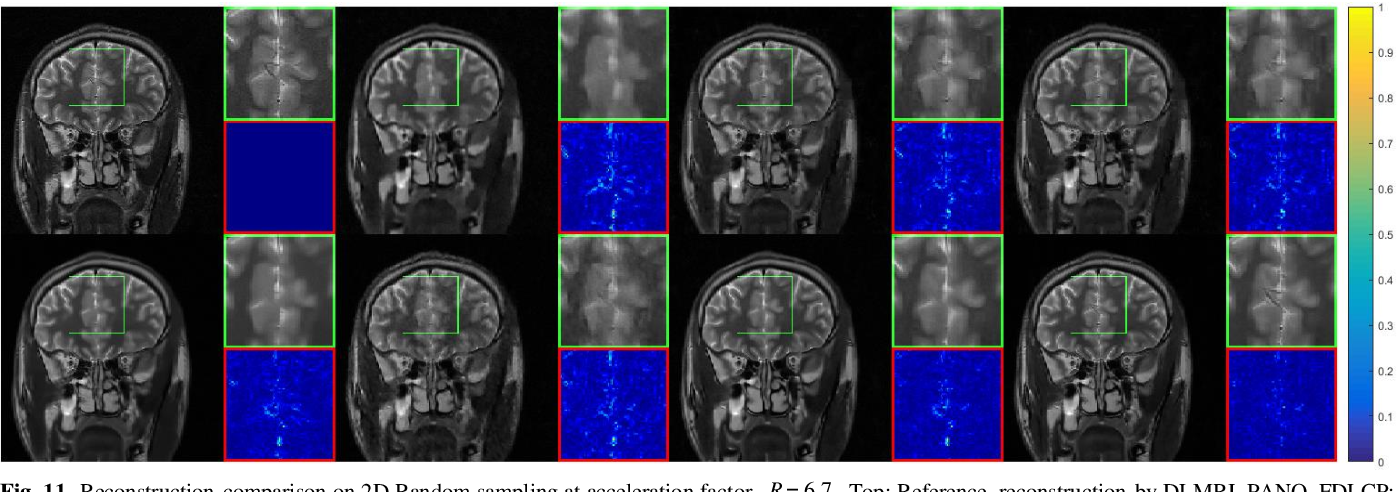 Figure 3 for Homotopic Gradients of Generative Density Priors for MR Image Reconstruction