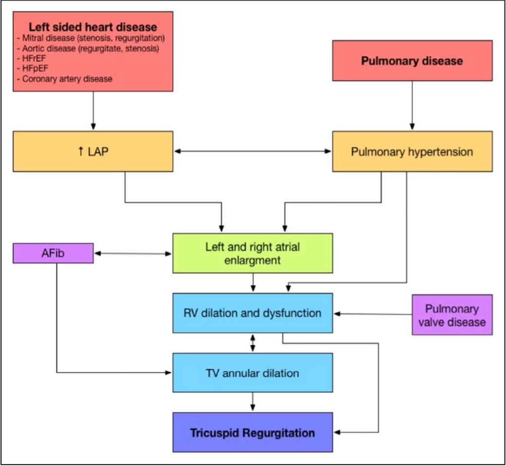 Mechanism And Implications Of The Tricuspid Regurgitation From