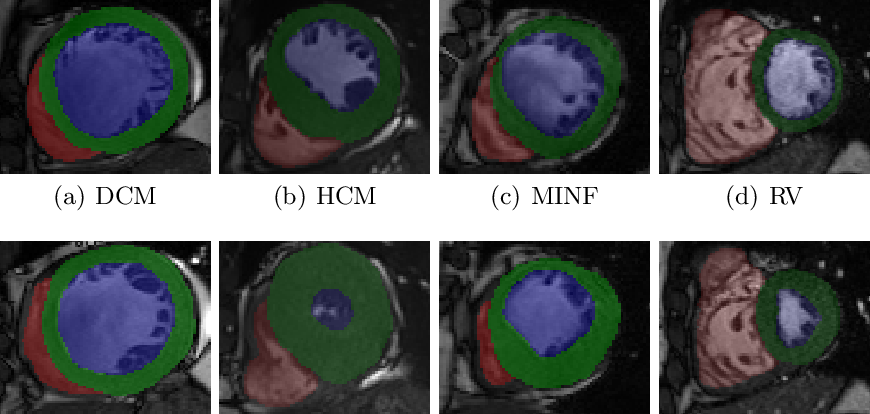 Figure 1 for A Radiomics Approach to Computer-Aided Diagnosis with Cardiac Cine-MRI