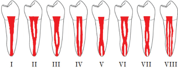 Prevalence Of Bilateral Symmetry In Root And Root Canal Anatomy Of