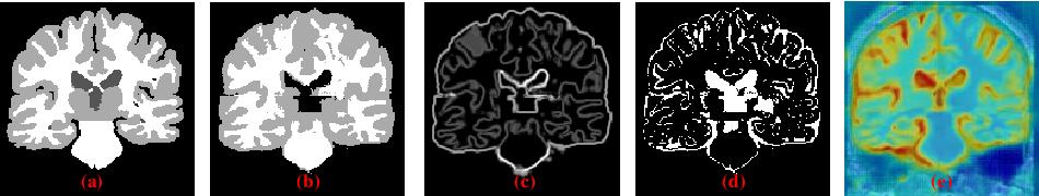 Figure 1 for Collaborative Boundary-aware Context Encoding Networks for Error Map Prediction